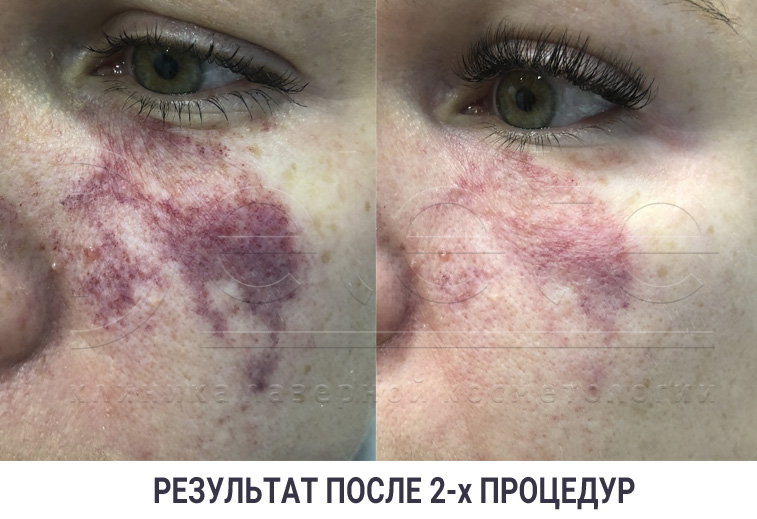 Лечение гемангиомы лазером, до и после