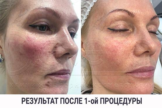Лечение розацеа лазером 1 процедура